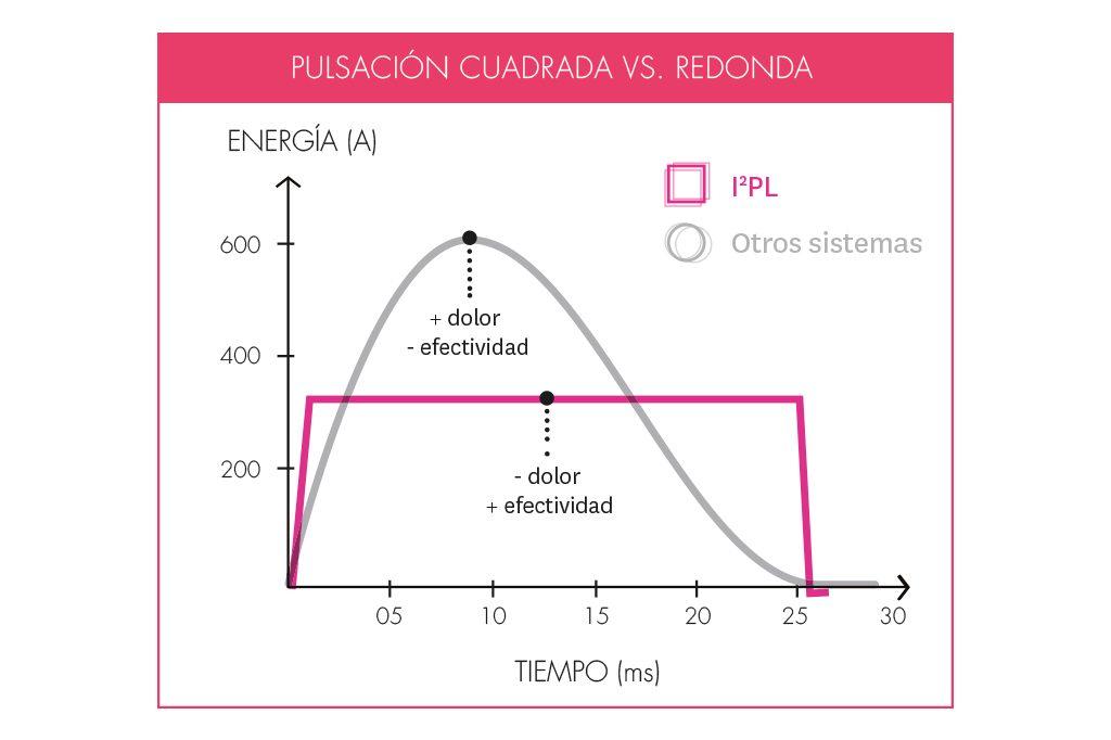 Pulsación cuadrada vs redonda